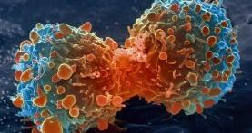 Satu dari Dua Orang Akan Bisa Terjangkit Kanker Semasa Hidupnya